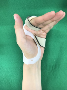 knuckle Orthosis1